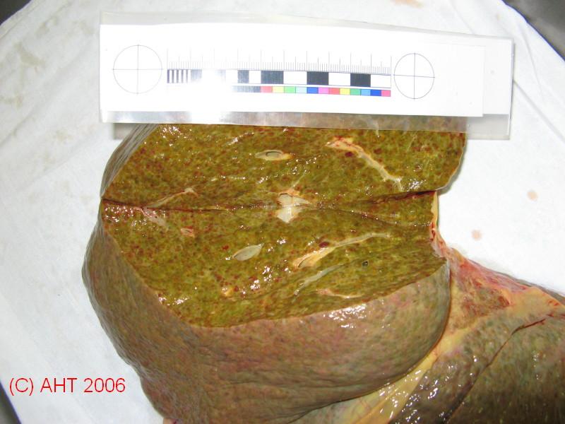 Токсический гепатит на фоне цирроза