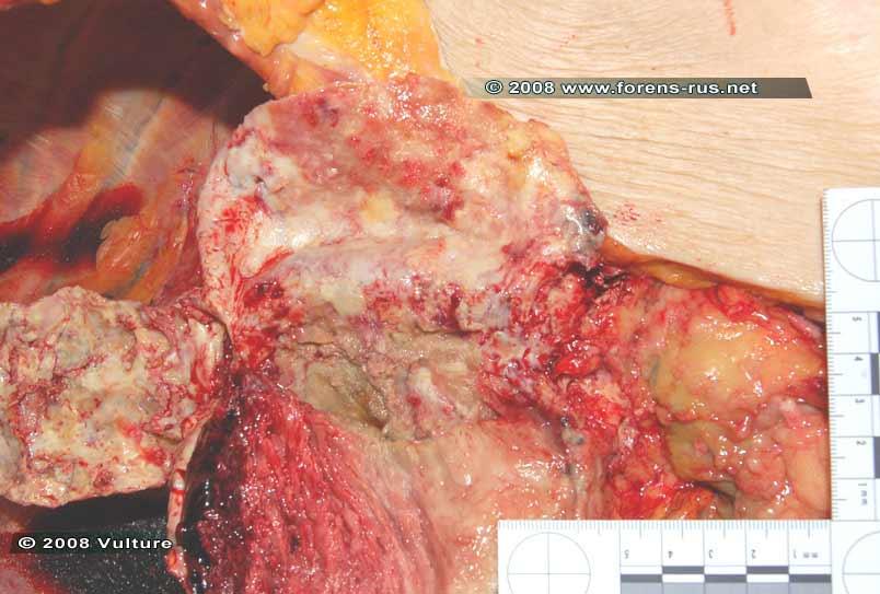Неразорвавшаяся мешотчатая (истинная) аневризма брюшной аорты