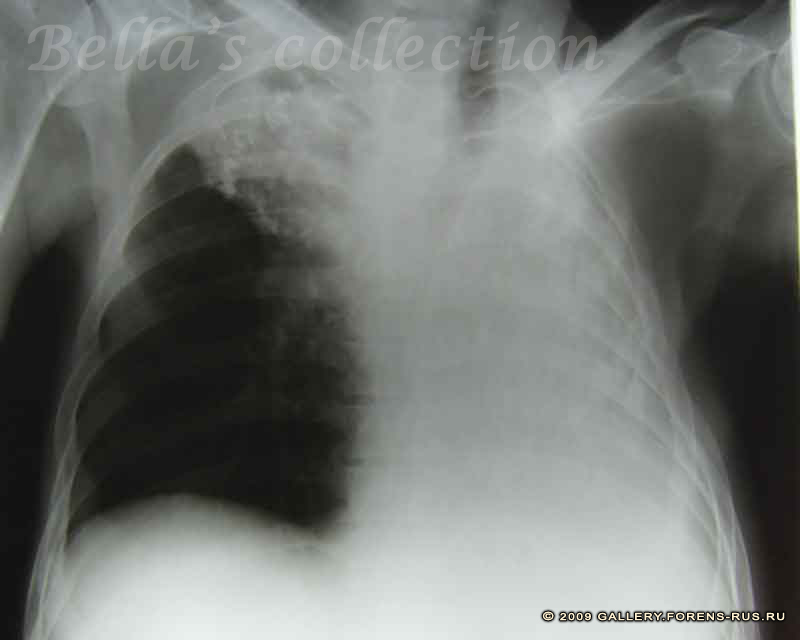 Рак легкого справа на рентгенснимке