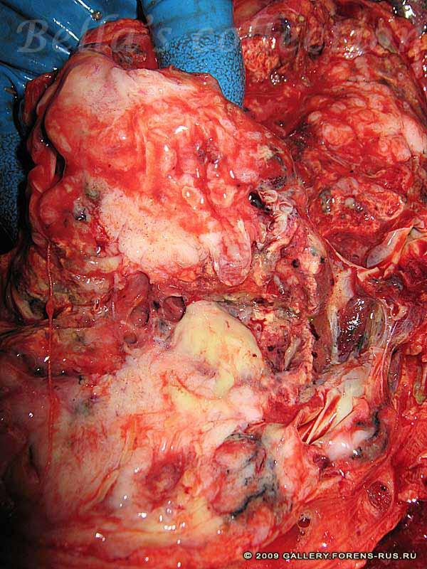 Рак верхнедолевого бронха справа