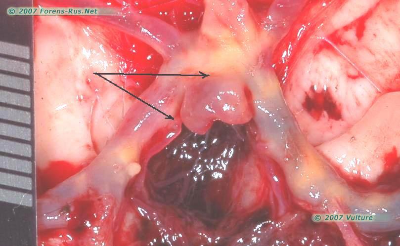 Аневризма в месте разделения основной артерии на основании головного мозга