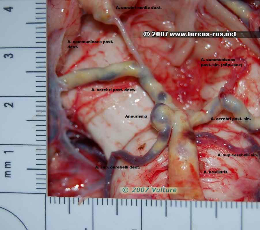 Мешотчатая аневризма в месте разветвления правой внутренней сонной артерии