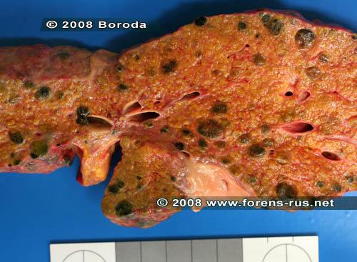 Цирроз печени портальный
