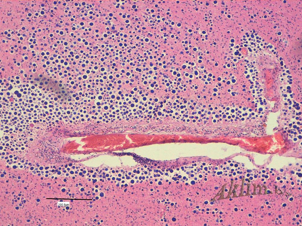 Гипоксические (амилоидные) тельца.
