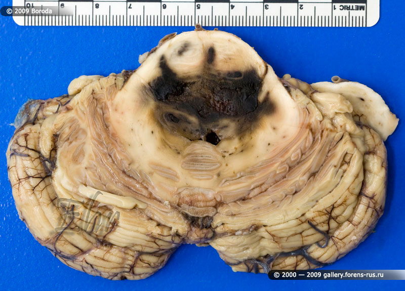 Кровоизлияние в стволовую часть мозга (первичное)