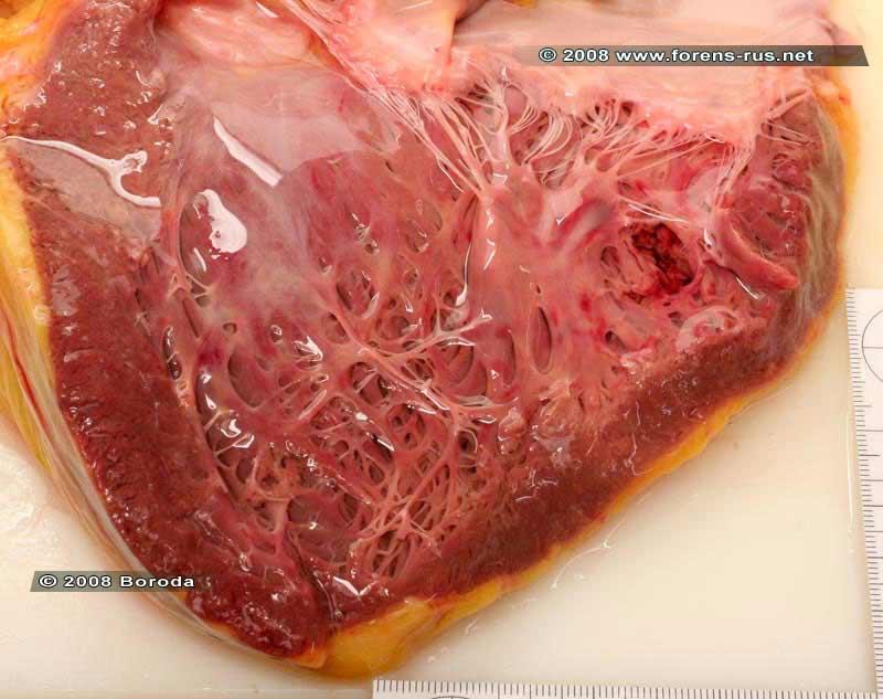 Разрыв задней стенки левого желудочка (2)