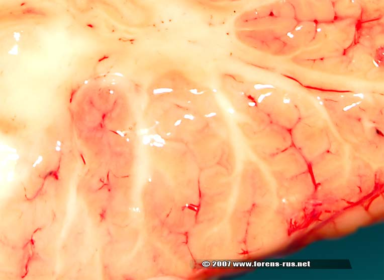Ишемический инфаркт мозжечка