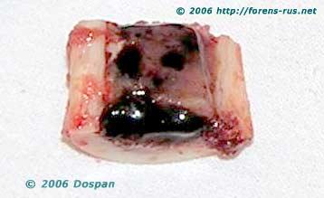 Лейкемическая метаплазия жирового костного мозга трубчатых костей
