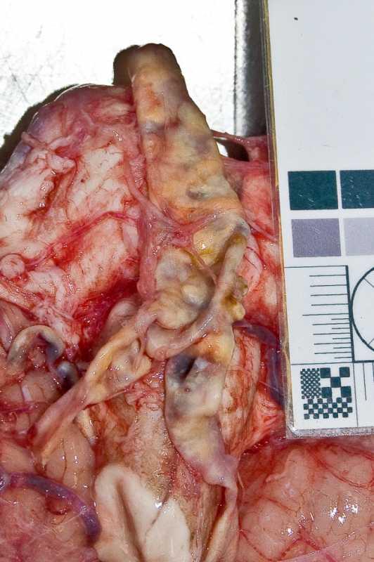 Цилиндрическая аневризма основной артерии