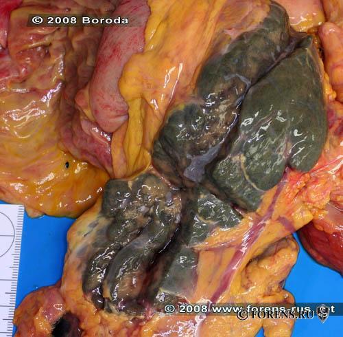 Геморрагический некроз поджелудочной железы