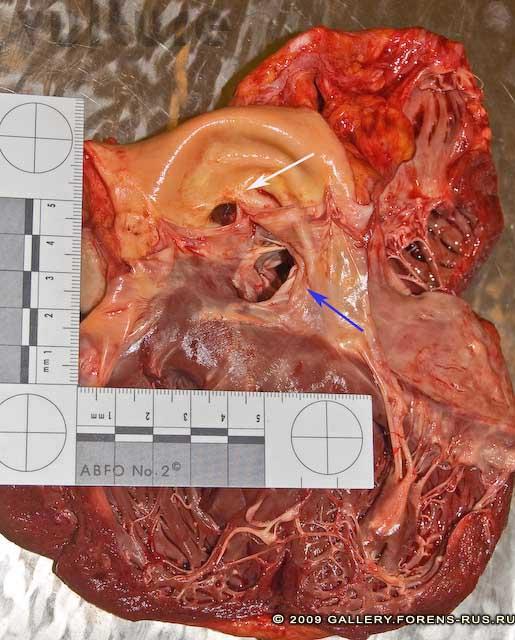 Полость левого желудочка и устье аорты