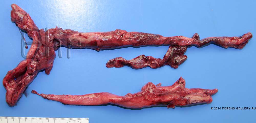 Извлеченные фрагменты тромба