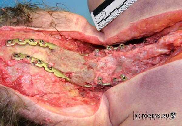 Методика препарирования задних отделов шеи