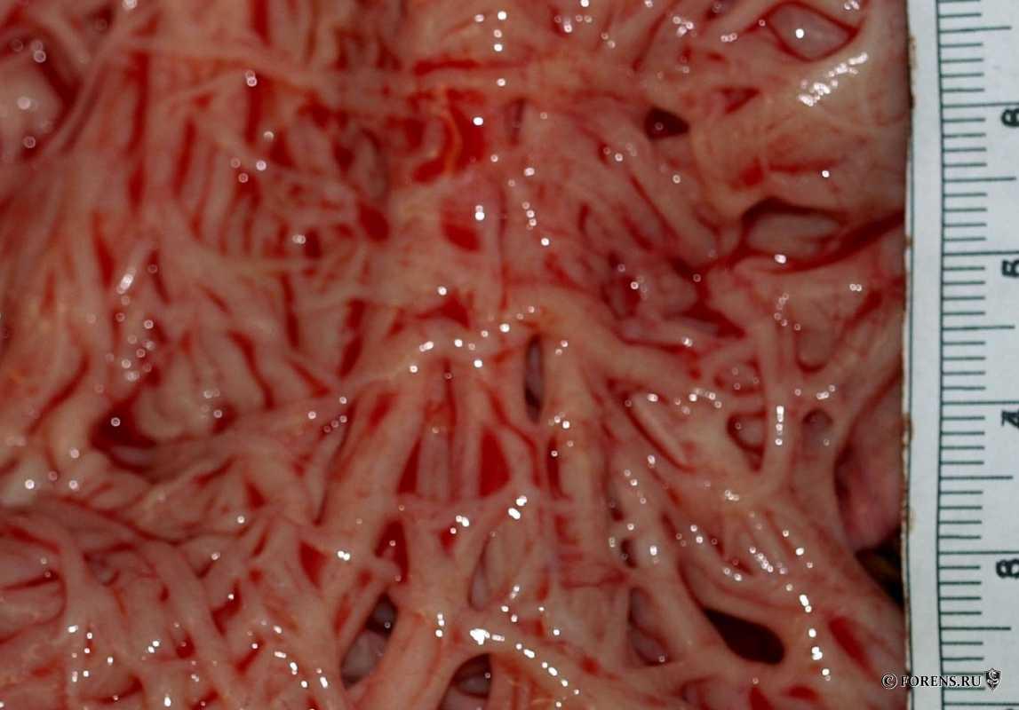 Гипертрофия мышц мочевого пузыря при аденоме простаты