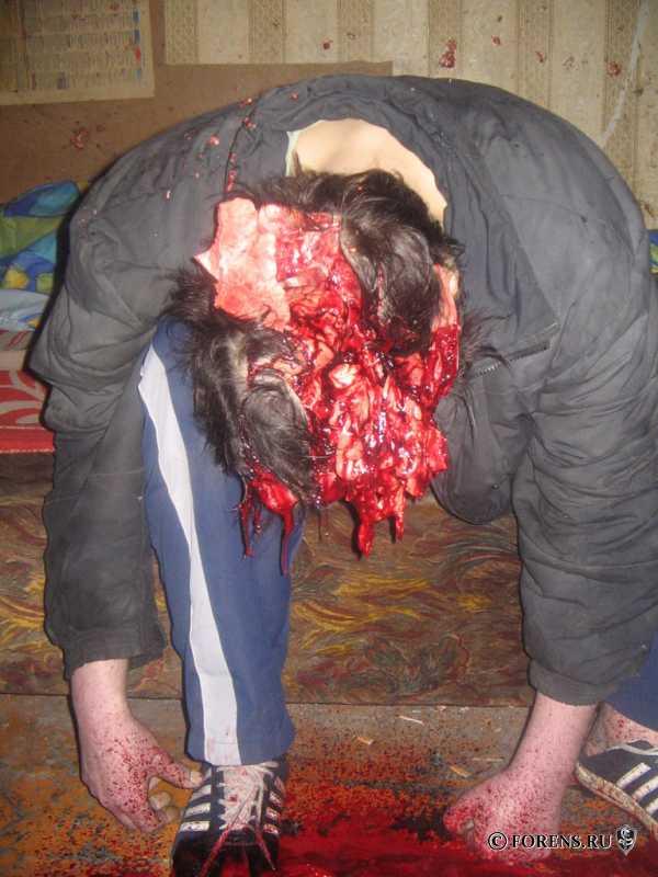 Ранение головы картечью