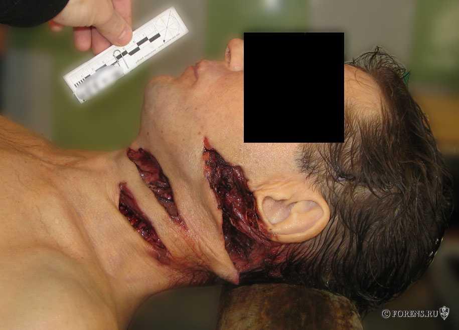 Рубленные раны шеи