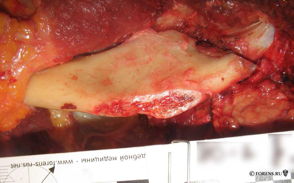 Повреждение угла нижней челюсти