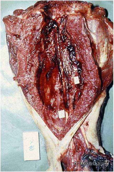 Сегментарные повреждения бедра при минной травме
