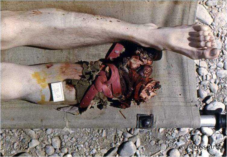 Травма противопехотной миной