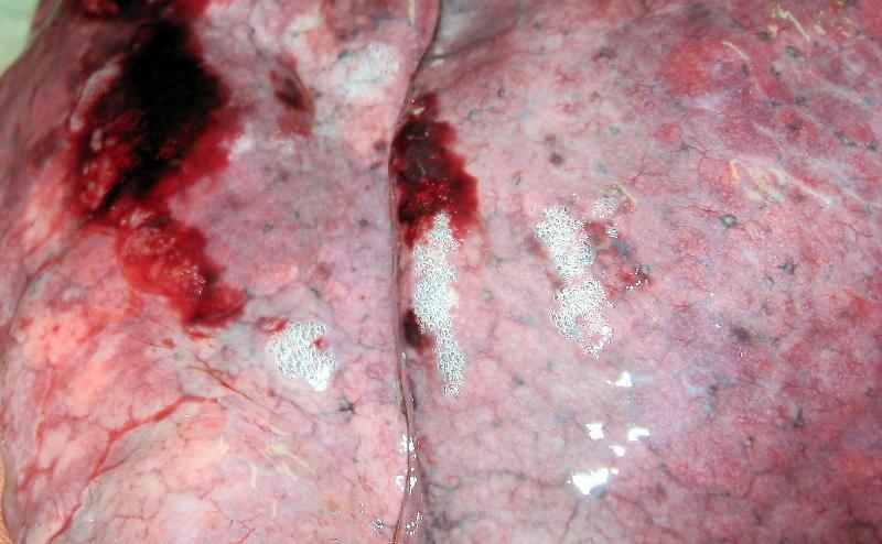 Лёгкие при компрессионной асфиксии