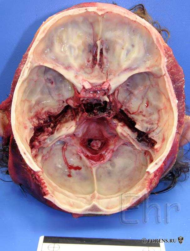 Переломы основания черепа