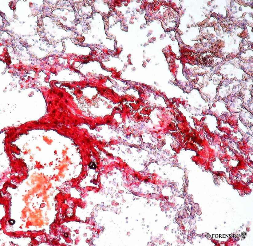 Жировая эмболия легких (гистология)