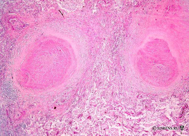 Туберкулезная гранулёма в легких