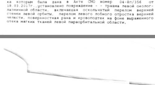 post-8679-0-53047900-1515661753_thumb.png