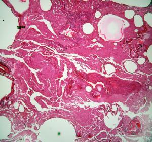 Прикрепленное изображение: lung3.jpg