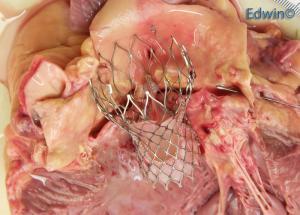 Прикрепленное изображение: aortic_valve4.jpg