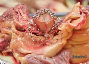 Прикрепленное изображение: aortic_valve5.jpg