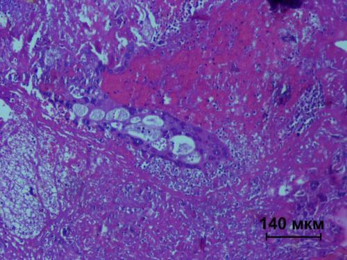 Прикрепленное изображение: Хориокарцинома.jpg