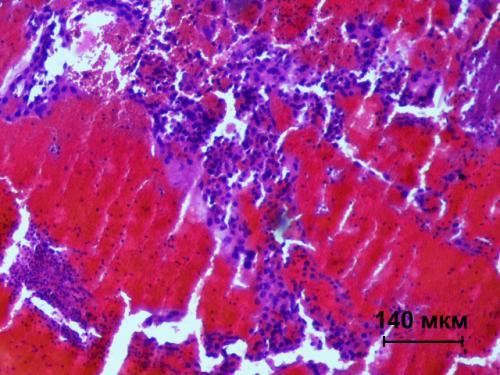 Прикрепленное изображение: Хориокарцинома 2.jpg
