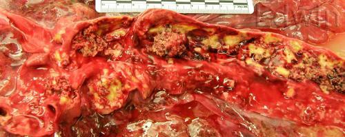 Прикрепленное изображение: aorta1.jpg