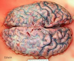 Прикрепленное изображение: fibrose1.jpg