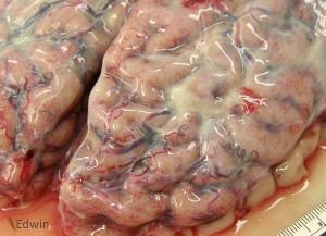 fibrose2.jpg