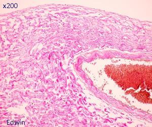 Прикрепленное изображение: fibrose8.jpg
