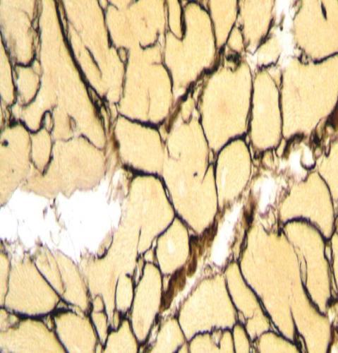 Прикрепленное изображение: серебрение миокарда, надрывы волокон при избытке железа.jpg