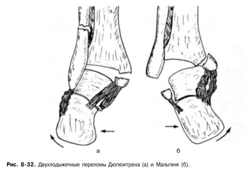 Прикрепленное изображение: дюпюитрена перелом (2).png
