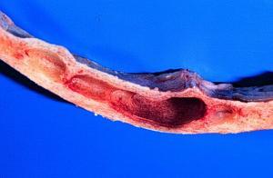 Прикрепленное изображение: Sinus_frontalis_Asphyxia.jpg