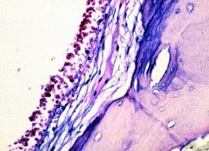 Прикрепленное изображение: Sinus_frontalis_haemorrhages_histo.jpg