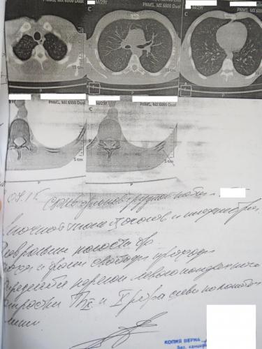 Прикрепленное изображение: РКТ  органов грудной клетки.jpg