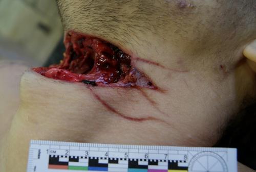Прикрепленное изображение: рана1.JPG
