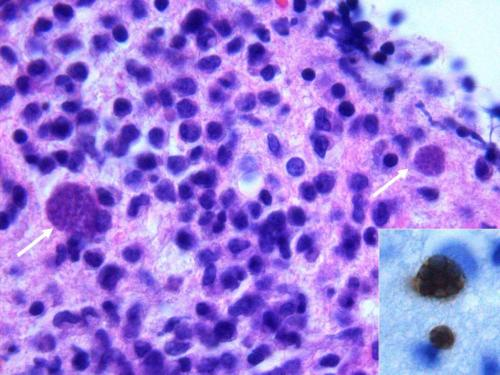 Прикрепленное изображение: Toxoplasmose.jpg