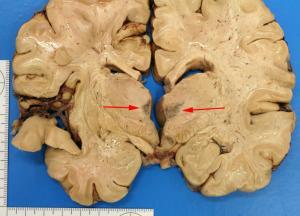 Wernicke__s_Encephalopathy1.jpg