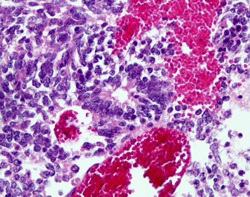 Прикрепленное изображение: Ependymoblastom2.jpg