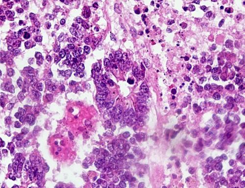 Прикрепленное изображение: Ependymoblastom1.jpg