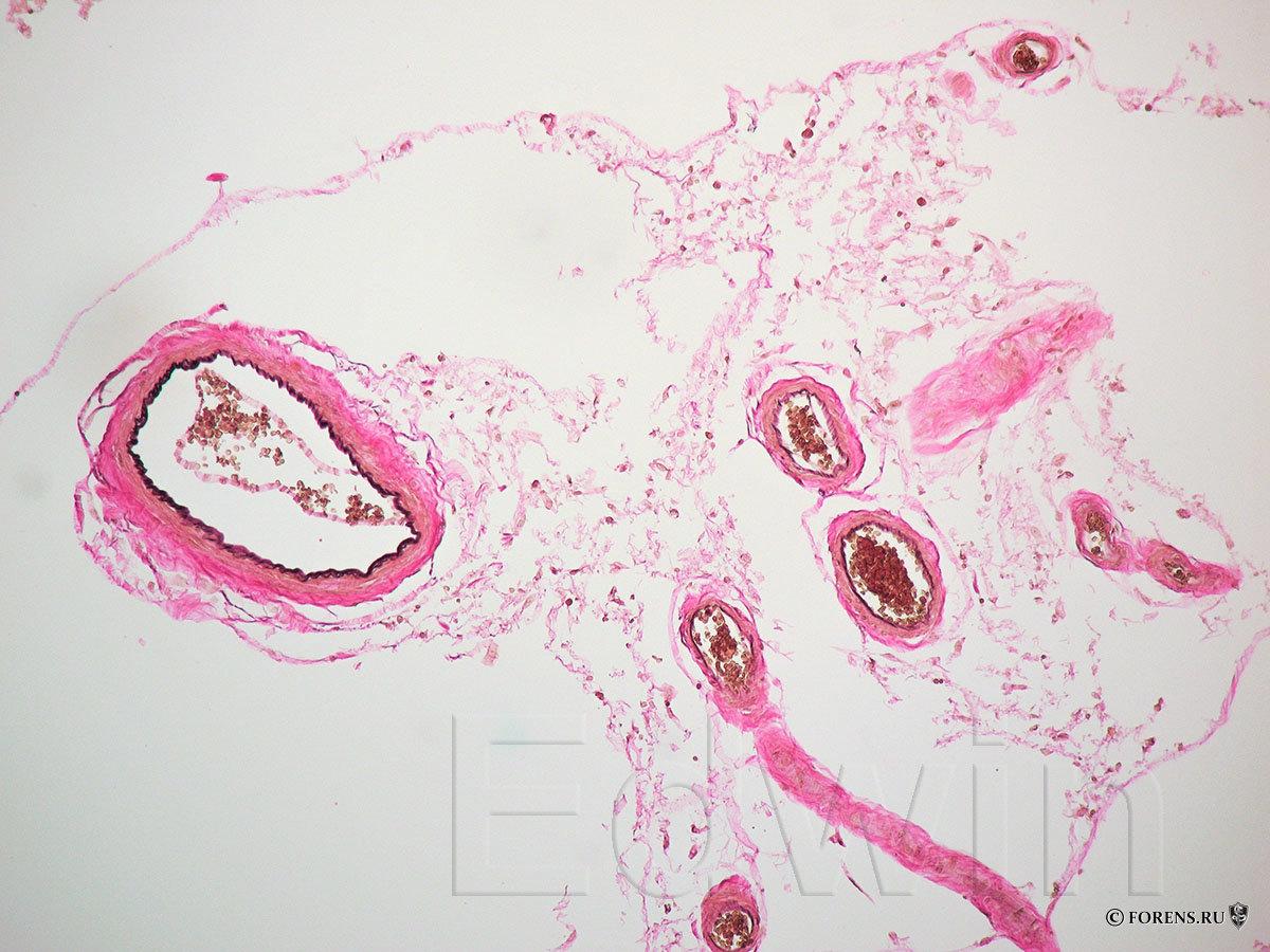 Гистология. Нормальные сосуды мягкой мозговой оболочки.