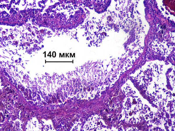 Висцеральный микоз с поражением легких