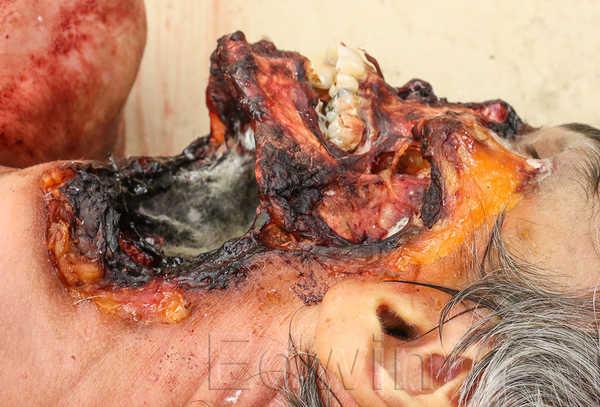 Повреждения клыками собаки